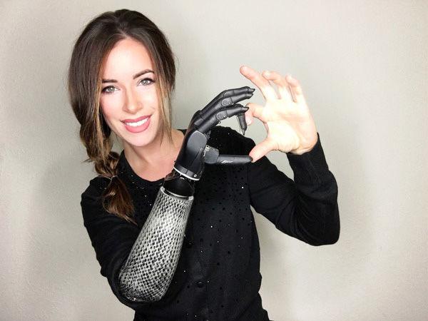protesi bionica
